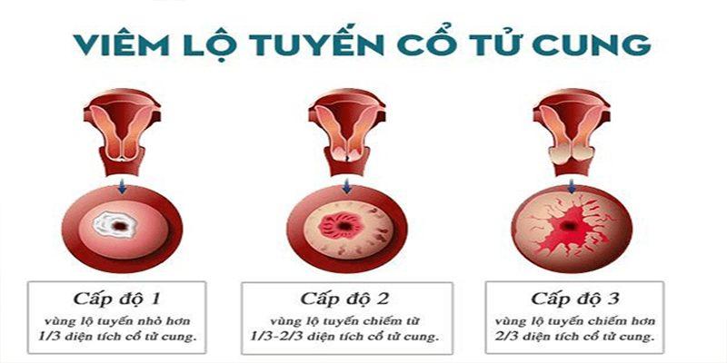 Triệu chứng bệnh viêm lộ tuyến cổ tử cung qua từng giai đoạn