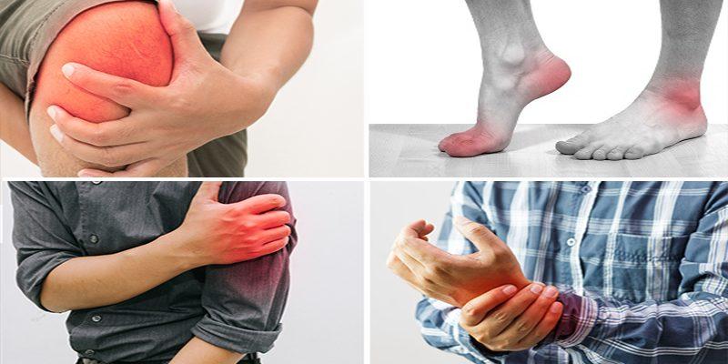 Viêm khớp dạng thấp là gì? Ai là đối tượng mắc bệnh?