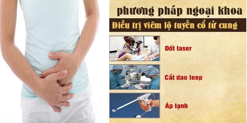 Những cách chữa viêm lộ tuyến cổ tử cung phổ biến