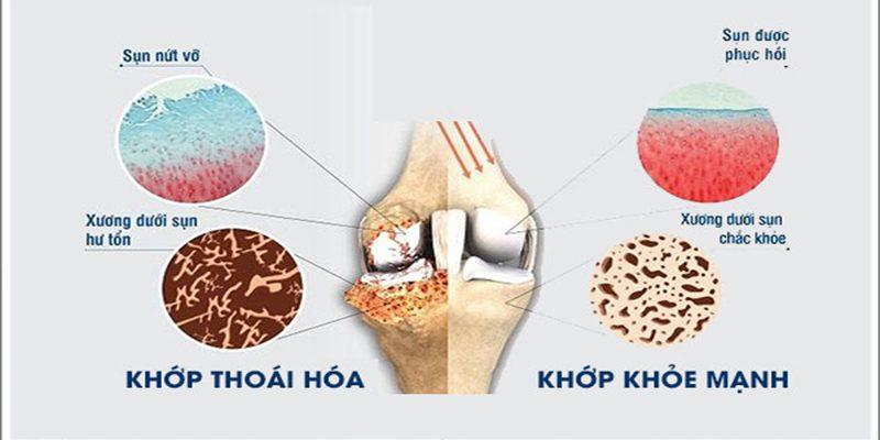 Bệnh thoái hóa xương khớp là gì?