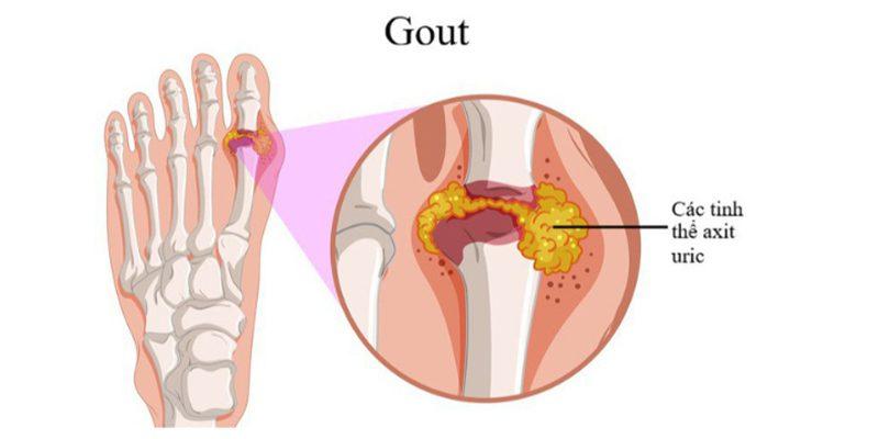 Tìm hiểu chung về căn bệnh Gout