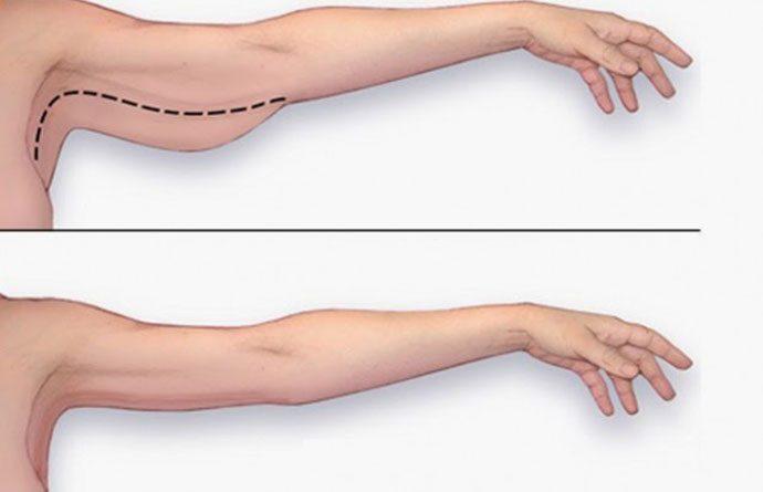 Giảm mỡ vùng cánh tay